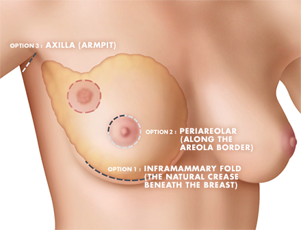 There are three different locations for a lumpectomy incision that make the scar less visible