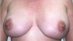 Hidden Scar Mastectomy Results