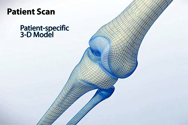 Robotic Arm Assisted Partial Knee Replacement