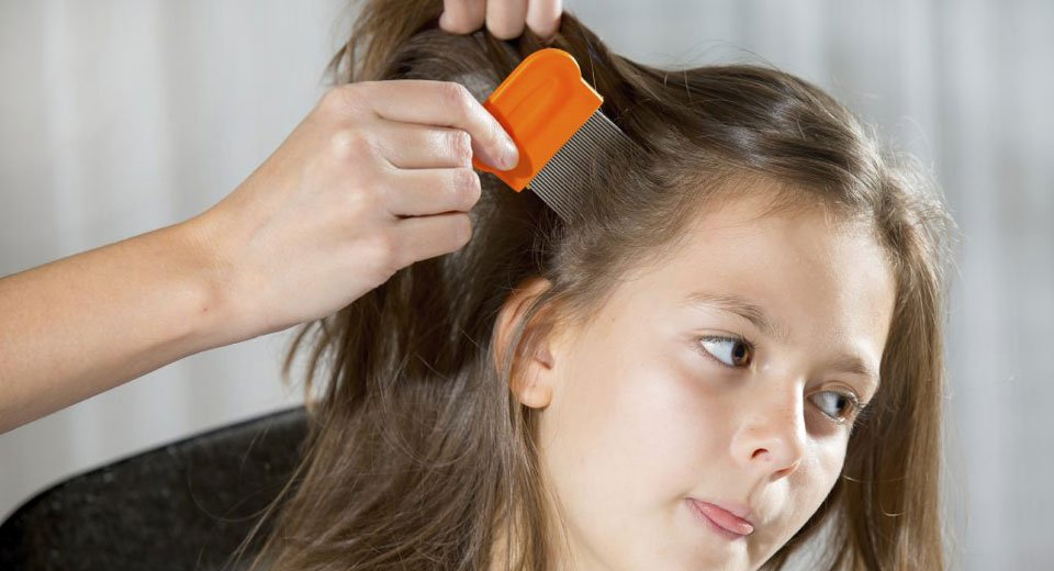 Super lice? No need to be super worried