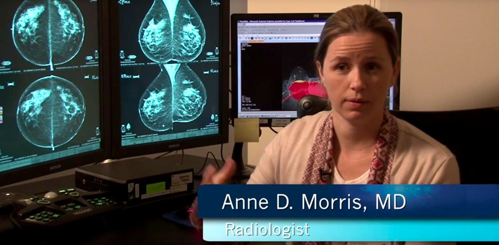 What is Fast MRI? Video with Dr. Anne Morris