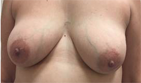 Hidden Scar Lumpectomy Results